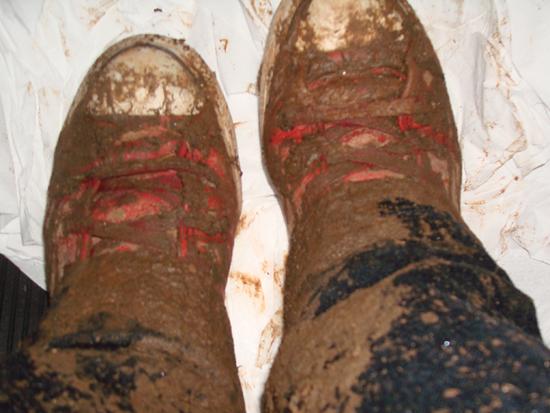 O estado dos meus pés quando saí do show